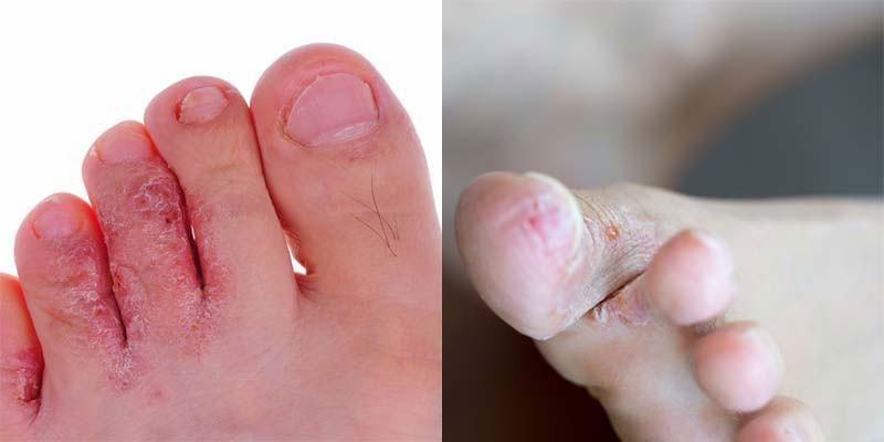 Fotos - Prurido e Fissuras da Pele do Pé